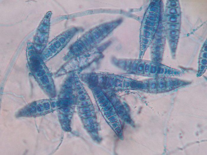 microsporum-canis